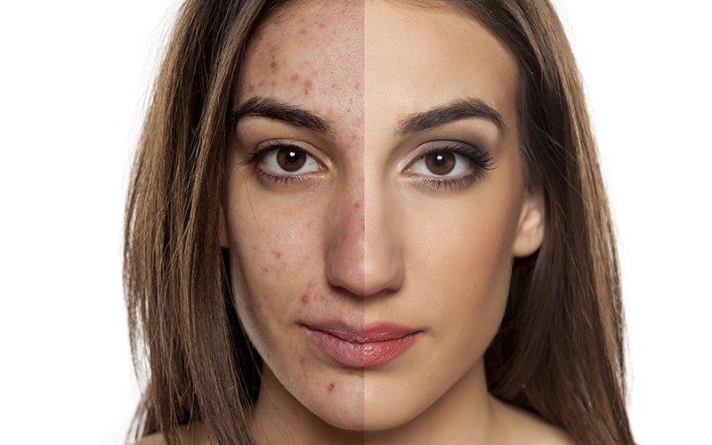 Trucco sposa per pelli acneiche