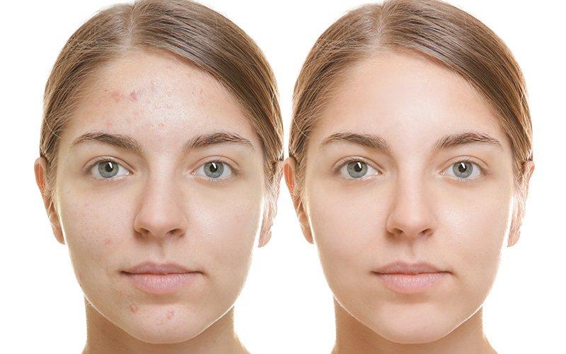 trucco-sposa-per-pelli-acneiche